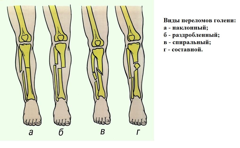 пластины при переломе ноги