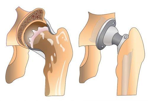 Как избавиться от хромоты после эндопротезирования тазобедренного сустава