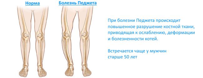 Где находится подвздошная кость у человека фото — Все про суставы