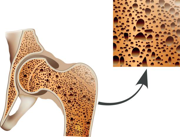 Остеопороз после эндопротезирования тазобедренного сустава