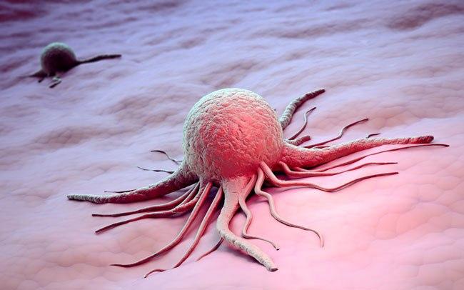 Рак тазобедренного сустава симптомы