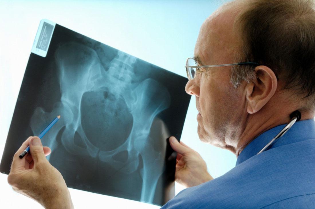 Можно ли делать эндопротезирование при остеопорозе