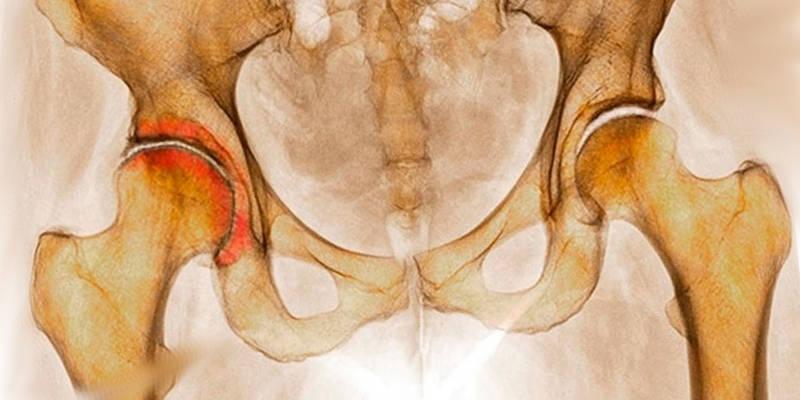 Какой врач лечит коксартроз — Суставы