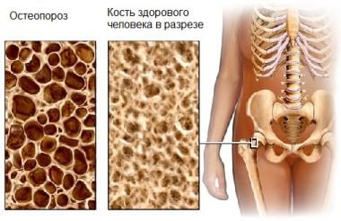Изображение - Остеопороз 3 степени тазобедренного сустава лечение Osteoporoz-380x246