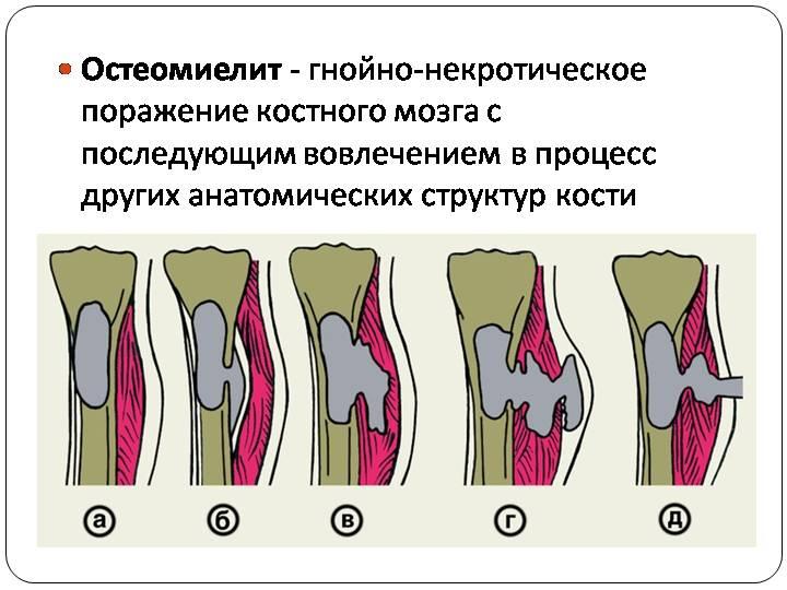 Мумие при остеомиелите эндопротез тазобедренного сустава
