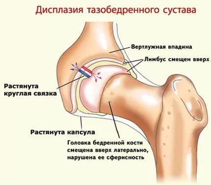 Изображение - Лечебная физкультура при дисплазии тазобедренного сустава Vertluzhnaya-vpadina-pri-displazii-tazobedrennogo-sustava