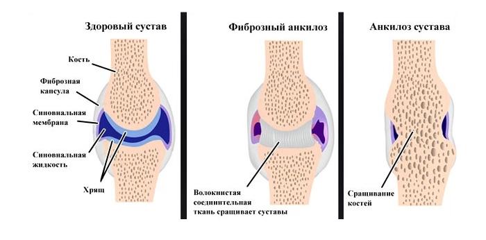 Изображение - Остеомиелит после замены тазобедренного сустава ankiloz-sustava