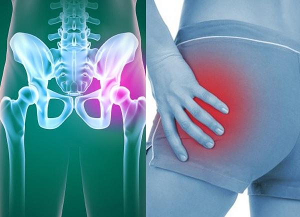 Защемление нерва в тазобедренном суставе (бедре): симптомы и лечение