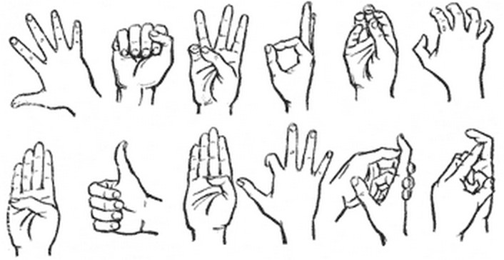 Что будет если не вправить вывих пальца