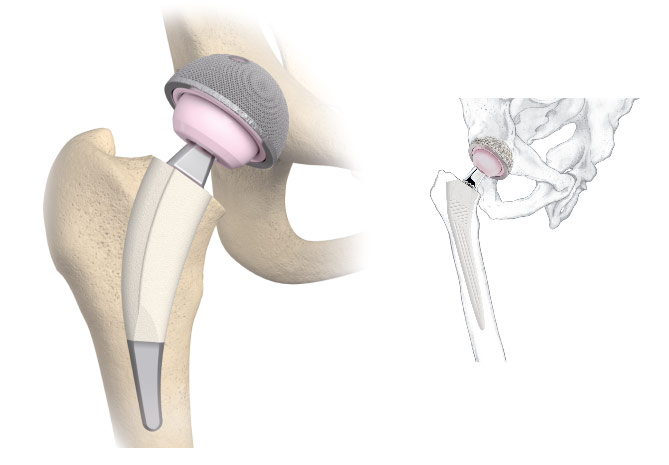 Нестабильный эндопротез тазобедренного сустава