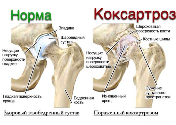 Изображение - Самомассаж тазобедренного сустава при коксартрозе im1