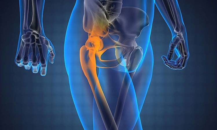 Остеомиелит и эндопротезирование сустава