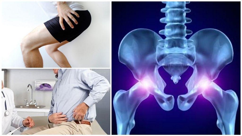 Медикаментозное лечение и роль сосудорасширяющих препаратов при коксартрозе. Эффективные способы лечения коксартроза тазобедренного сустава
