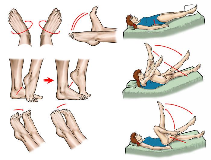ЛФК и гимнастика после перелома лодыжки после снятия гипса