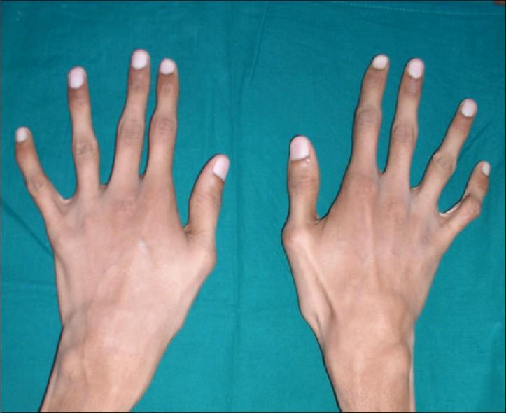 Деформация суставов пальцев рук лечение искривления