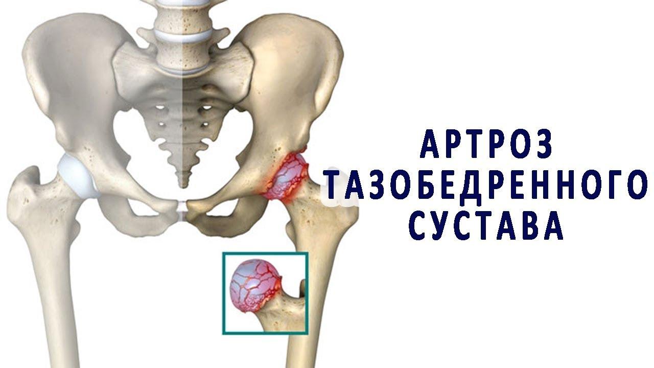 Изображение - Обезболивающие мази для суставов тазобедренных maxresdefault-2
