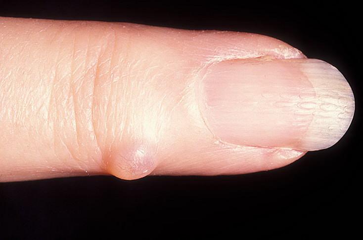 Гигрома на пальце руки – лечение народными сридствами