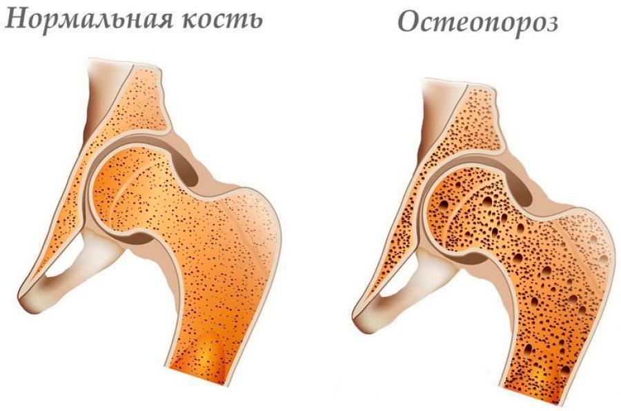 остеопороз что это такое эндопротезирование