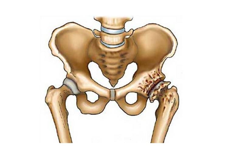 Коксартроз тазобедренного сустава 2 степени – симптомы и лечение без операции