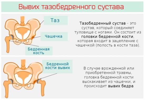 Признаки вывиха после эндопротезирования
