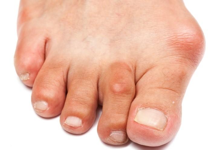 Косточки на пальцах ног лечение народными средствами