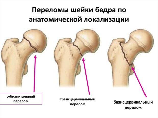 Изображение - Строение мышц тазобедренного сустава slide-14-e1512467639416
