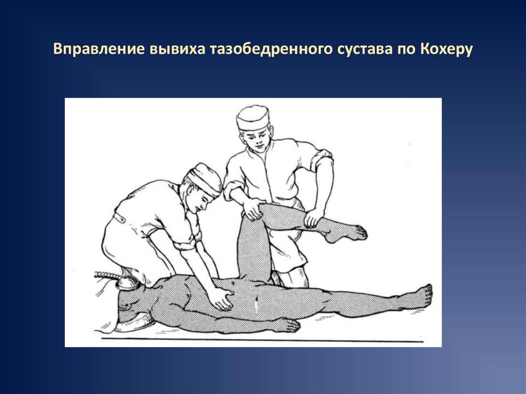 Изображение - Как вправить тазобедренный сустав slide-28