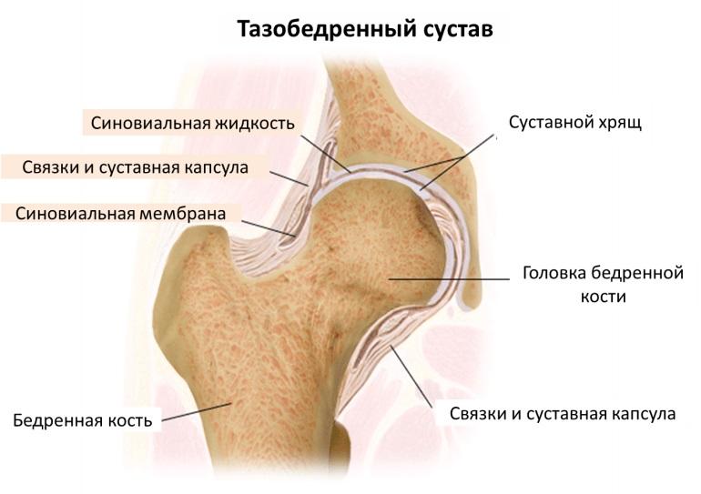 Растяжение связок тазобедренного сустава симптомы