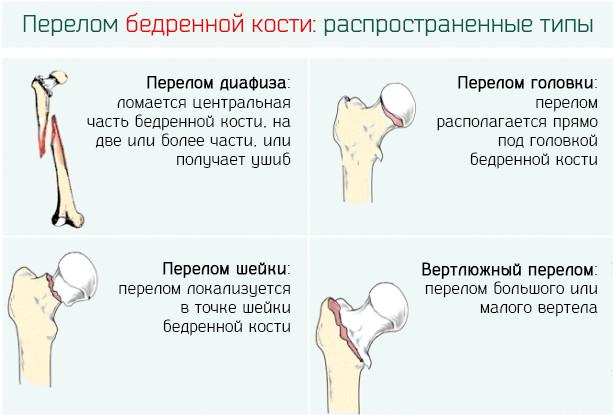 Перелом бедренной кости лечение и реабилитация у детей