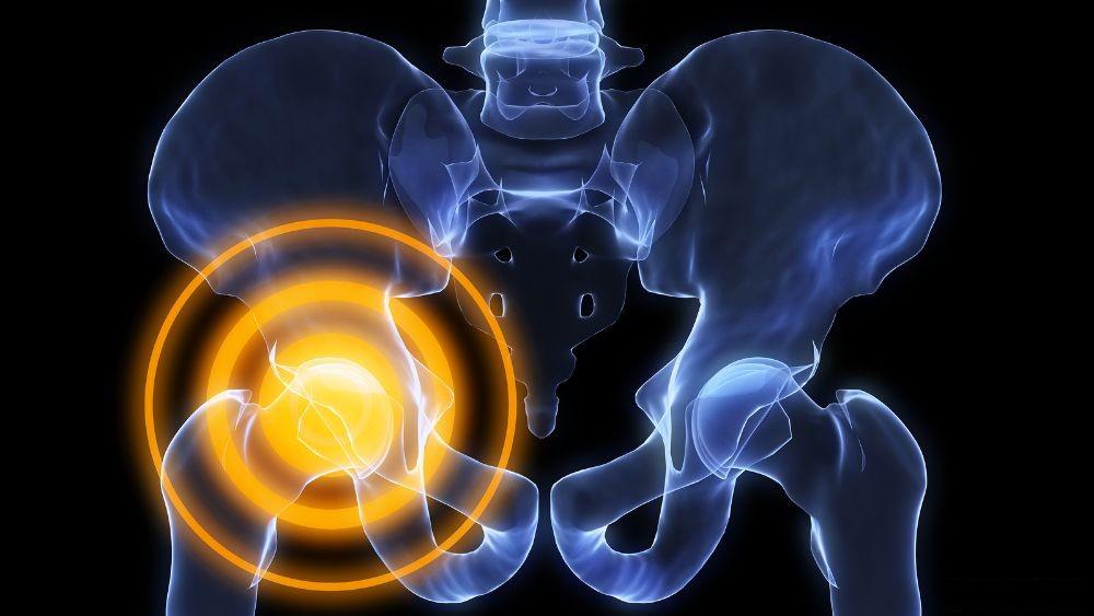 Щелкает эндопротез тазобедренного сустава