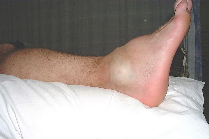 Реабилитация после перелома ноги