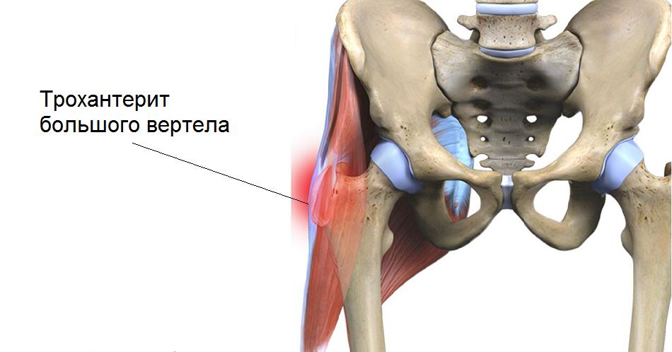 Изображение - Причины жжения тазобедренных суставов trochanterit