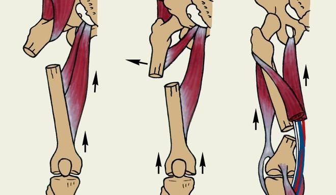 Перелом диафиза бедренной кости или диафизарный перелом