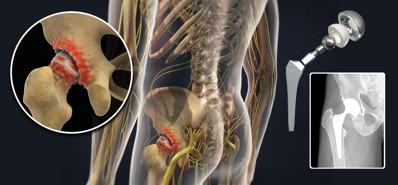 Эндопротезирование тазобедренного сустава по квоте в москве в цито