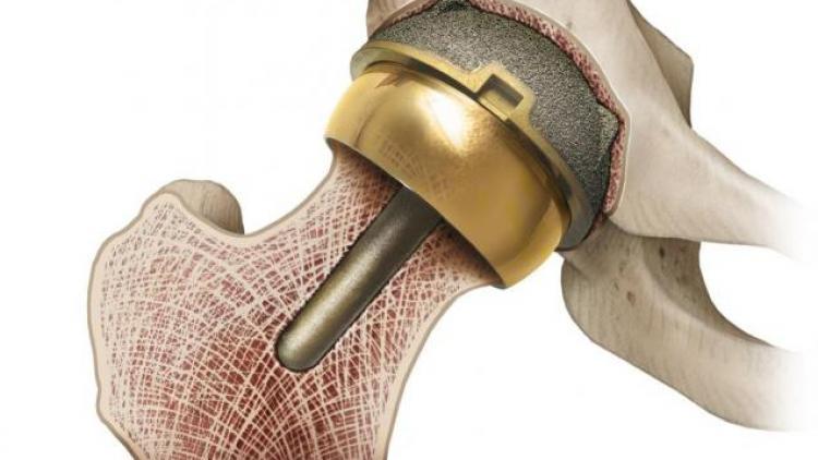 Ревизионное эндопротезирование коленного сустава что это такое