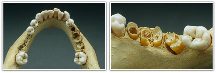 Симптомы остеонекроза челюсти почему разрежение костной ткани возникает во время лечения онкологии