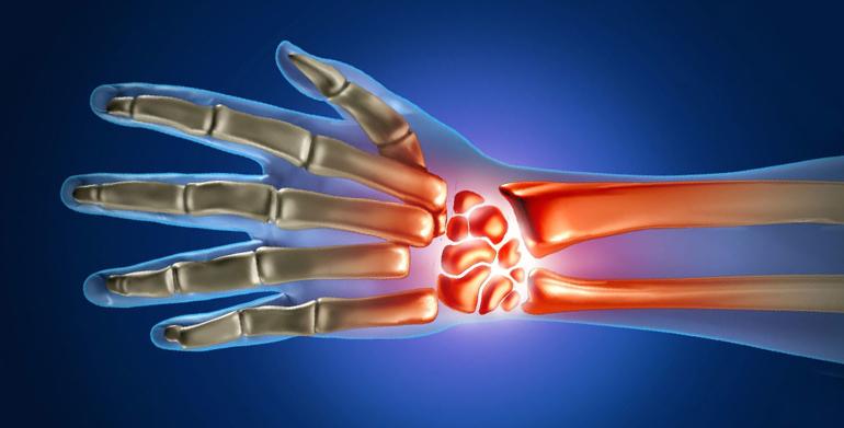 Вс что нужно знать об артрите лучезапястного сустава