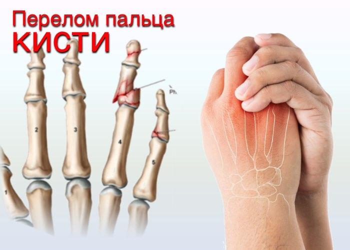 Если не лечить перелом пальца руки