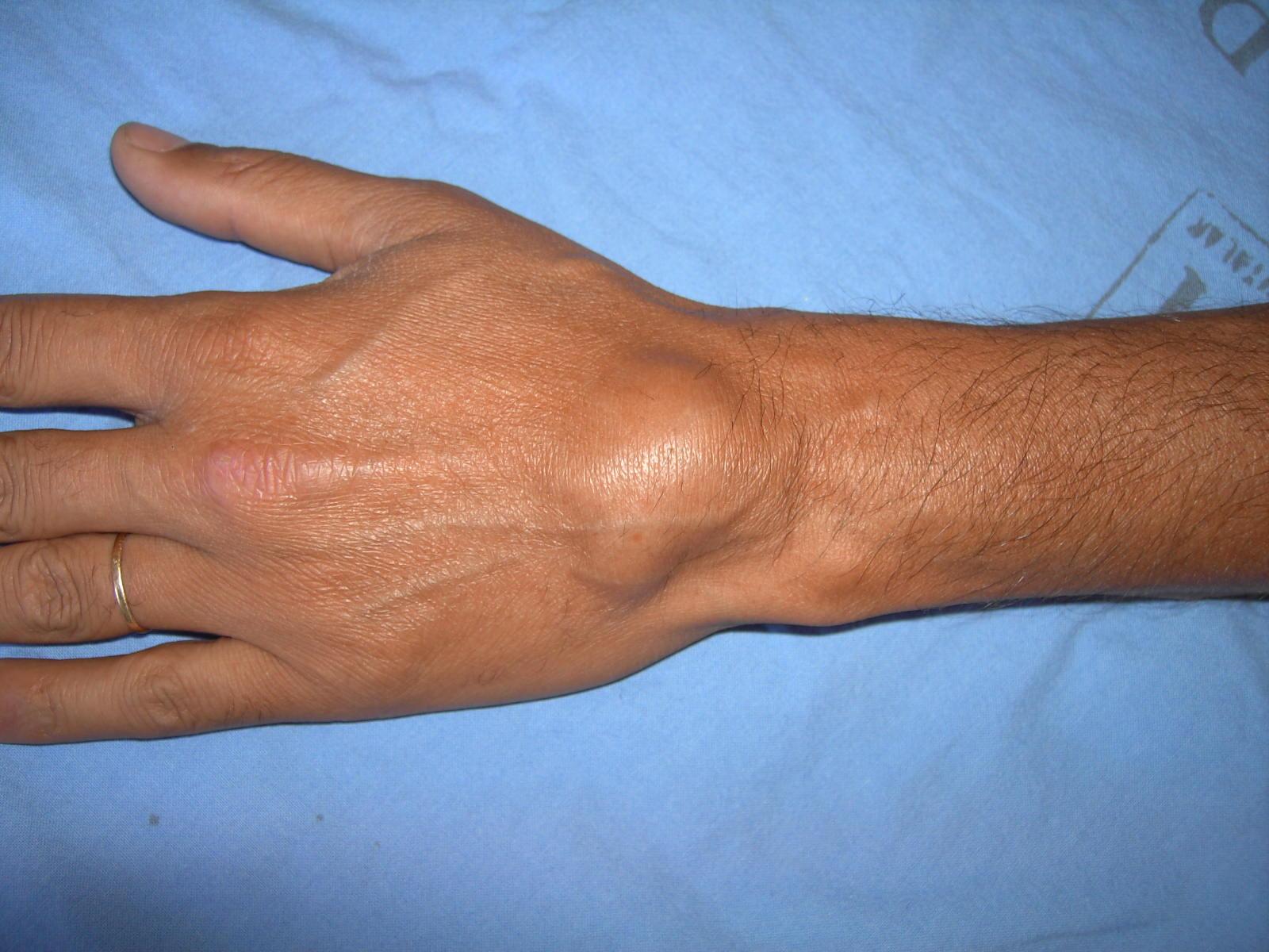 Гигрома: опасна ли шишка на запястье