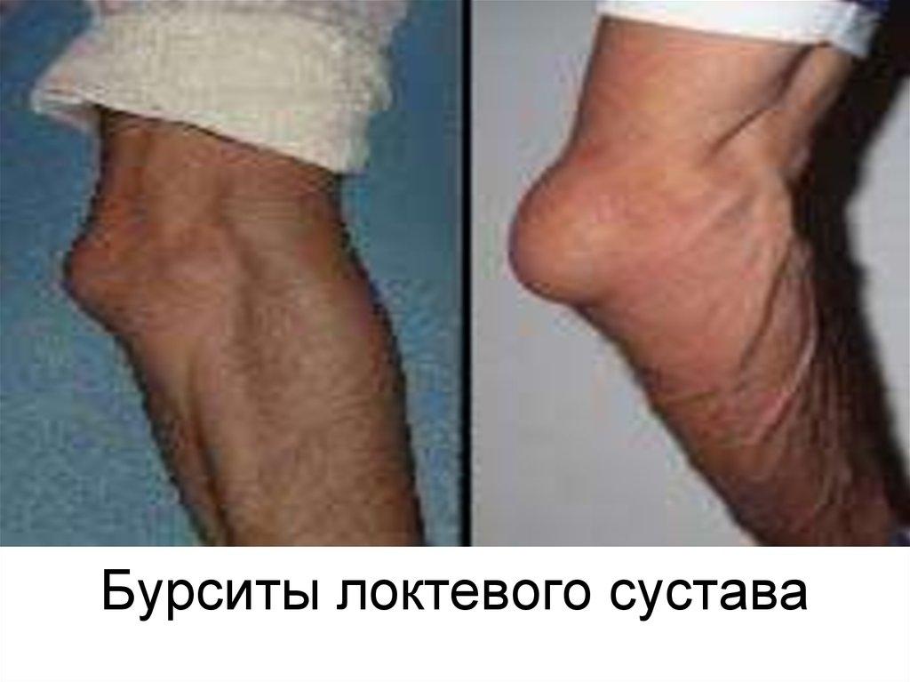 Эпикондилит локтевого сустава как лечить локоть теннисиста