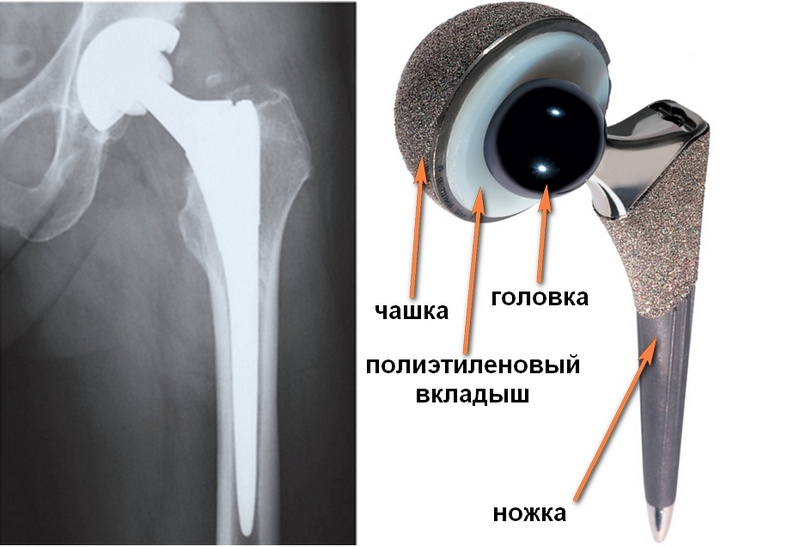 Статистика эндопротезирования тазобедренного сустава россия